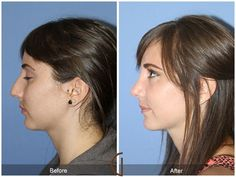 Before and after nose job surgery | Best Rhinoplasty