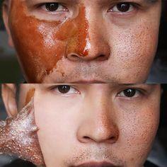 Honey tearing mask Peel Mask oil control Blackhead Remover Peel Off Dead Skin Clean Pores Shrink Facial care face Skincare mask, acne Beauty Care, Beauty Skin, Beauty Tips, Beauty Hacks, Cystic Acne Treatment, Natural Acne Treatment, Acne Spot Treatment, Clean Pores, Organic Skin Care