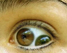 """Pupula Duplex (Eyes With 2 Pupils) o.O  Liu Ch'ung was a Chinese emperor that was featured in a episode of """"Ripley's Believe it or Not!"""" because he had two irises/pupils in each of his eyeballs.It's basically a condition that is called """"pupula duplex"""" — which means in Latin: """"double pup"""