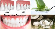 Gum Disease: The Silent Killer, 8 Home Remedies to Cure It Naturally Health And Nutrition, Health Tips, Home Remedies, Natural Remedies, Fitness Diet, Health Fitness, Naturopathy, Dental Care, Aloe Vera