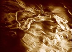 A confocal image showing damaged collagen fibres in a ruptured tendon. The area of wavy fibres to the lower right shows the normal, healthy appearance of tendon. The waviness allows the whole tendon to have a small amount of elasticity (between 2 and 10 per cent): the collagen fibres themselves do not stretch.    Credit: Martin Knight, Wellcome Images.