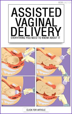 Assisted Vaginal Delivery - Everything You Need To Know About It