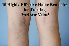10 Highly Effective Home Remedies for Treating Varicose Veins! http://www.extremenaturalhealthnews.com/10-highly-effective-home-remedies-for-treating-varicose-veins/