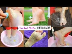 Remedies to Fix Cracked Heels and Dry Feet: Cracked Feet Remedies, Foot Remedies, Beauty Tips For Face, Beauty Hacks, Skin Polish, Whitening Skin Care, Remove Belly Fat, Funny Prank Videos, Small Rangoli Design