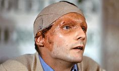 RUSH: F1 driver Niki Lauda at a press conference in 1976 following his crash and subsequent burns at the German Grand Prix