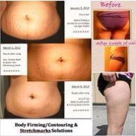 Body Baby The Body Sculpting Spa
