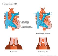 Cardiology : Aortic Stenosis AS Aortic Valve Replacement, Aortic Stenosis, Medical Textbooks, Lv Lv, Heart Anatomy, Congenital Heart Defect, Normal Heart, Acute Care, Cardiology