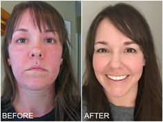 Hypothyroidism Before and After -- You can get more details by clicking on the image.