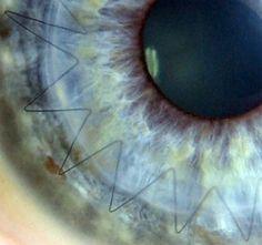Stitches in a cornea after transplant