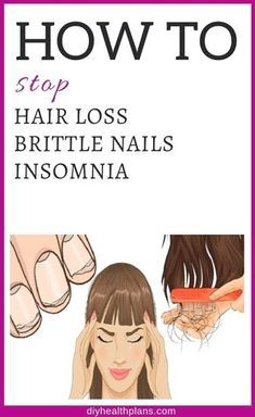 Female loss of hair can be scary. Below are one of the most common causes for ladies's hair to fall out, plus, treatments for hair loss and also exactly how to prevent it. Best Hair Loss Shampoo, Biotin For Hair Loss, Oil For Hair Loss, Anti Hair Loss, Biotin Hair, Hair Shampoo, Normal Hair Loss, Stop Hair Loss, Prevent Hair Loss