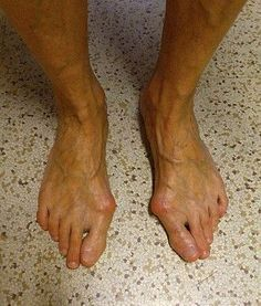 Jak na vbočené palce :: Imzadi rekondiční centrum Brno Beauty Tips For Face, Health And Beauty Tips, Femoral Nerve, Ginger Wraps, Half Marathon Training Plan, Home Treatment, Lose 20 Pounds, Natural Health Remedies, Feet Care