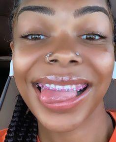 Gold Braces, Black Braces, Teeth Braces, Cute Braces Colors, Cute Girls With Braces, Cute Nose Piercings, Body Piercings, Braces Tips, Beauty Skin
