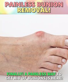 Bunion corrector 16 surprising health benefits of walking daily health 16 surprising health benefits of walking daily Cystic Acne Treatment, Back Acne Treatment, Bunion Relief, Pain Relief, Carpal Tunnel Relief, Asthma Relief, Bunion Remedies, Foot Remedies, How To Get Rid