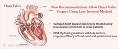 Heart Valve Replacement Patients With High Risk Recommended Less Invasive Surgery Procedure