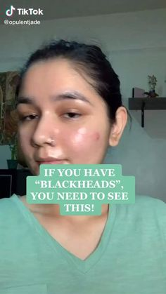Piel Natural, Clear Skin Tips, Get Rid Of Blackheads, How To Clear Blackheads, Acne Blemishes, Homemade Skin Care, Homemade Mask, Homemade Facials, Skin Tips