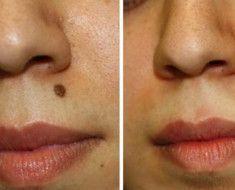 Get Rid of Moles on Skin http://www.wartalooza.com/treatments/compound-w-wart-remover