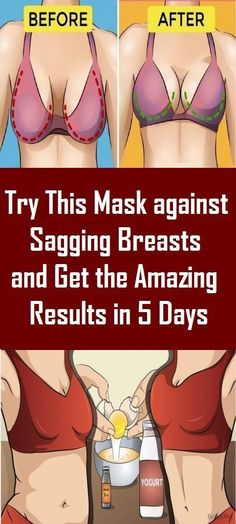 Breasts are made of fatty tissue, connective tissue and glands. These tissues and glands start to loose with the process of aging and that's how the sagging problem in females appears. Different Types Of Arthritis, Lower Stomach, Leg Pain, Thyroid Problems, Circulatory System, Varicose Veins, Natural Home Remedies, To Loose, Health Remedies