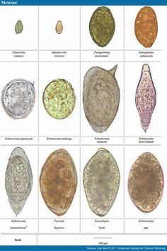 Penicillium Conidia Labeled Penicillium co  fungology  Medical laboratory science