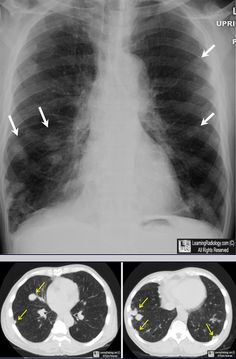 Rheumatoid Nodules: Above: Frontal radiograph of chest shows innumerable nodules scattered throughout both lungs (white arrows). Below: Two images from a CT scan of the chest show the nodules are mostly subpleural in location (yellow arrows). Patient had a long-standing history of rheumatoid arthritis and nodules were unchanged for 6 years.