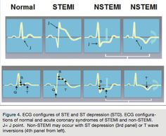 Is This a True STEMI ECG? Typical and Atypical Findings | Cath Lab ...