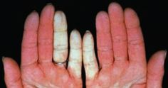 scleroderma | Raynaud's phenomenon is a symptom of scleroderma. The fingers or ...