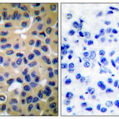 Immunohistochemistry analysis using Rabbit Anti-Collagen II Polyclonal Antibody (SPC-1274). Tissue: Breast Carcinoma Tissue. Species: Human. Fixation: Formalin fixed paraffin-embedded. Primary Antibody: Rabbit Anti-Collagen II Polyclonal Antibody (SPC-1274) at 1:100. The image on the right is treated with the synthesized peptide.