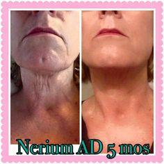 Nerium results Www.lc2305.nerium.com