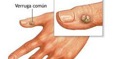 Mantenga piel limpia y libre de manchas - e-Consejos