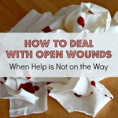 Sure, we can all handle basic first aid. But what about serious wounds? Learn how to deal with open wounds when help is not on the way.  Hint: you might be surprised.