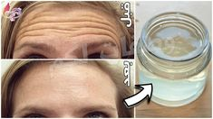Wrinkle Remedies, Skin Care Remedies, Dry Hands Remedy, Beauty Skin, Health And Beauty, Creepy Skin, Flaxseed Gel, Flawless Makeup, Tips Belleza