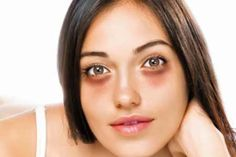 10 Ways of Eliminating Under Eyes Dark Circles Read full article---> http://womenkingdom.com/10-ways-of-eliminating-under-eyes-dark-circles
