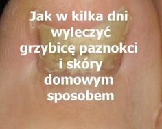 PrzepisyNaZdrowie.pl-jak-w-kilka-dni-wyleczyc-grzybice-paznokci-stop-skory Pedicure, Tattoo Quotes, Remedies, Health, Pedicures, Salud, Toe Polish, Quote Tattoos