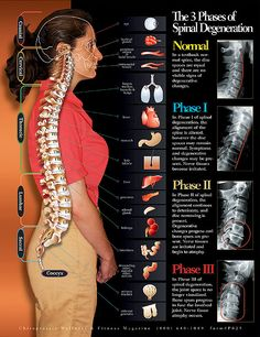 Spinal stenosis has become very common these days and it is a cause for chronic back pain in adults. Here are 11 things everyone should know about spinal stenosis. Cervical Spinal Stenosis, Cervical Disc, Spinal Stenosis Surgery, Douleur Nerf, Medical Student, Radiology Student, K Tape, Spinal Nerve, Spinal Cord