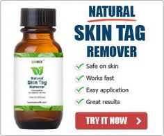 10 Home Remedies to Remove Skin Tags - Page 10 of 10 - Natural Home Remedies
