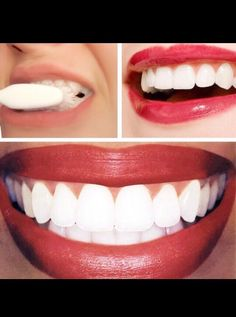 How To Get White Teeth Fast #Beauty #Trusper #Tip