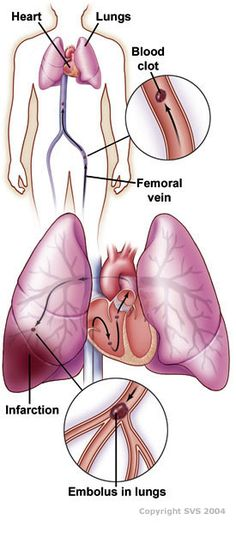 Pulmonary Embolism.  Most are caused by a blood clot (loosened thrombus), but could be of different origin: fat, amniotic fluid, air, tumor, foreign material, septic, or parasitic.  1:13 patients who develop a PE die.  In a healthy person, it takes 50% impairment of a vessel before dangerously high pulmonary arterial pressure develops.  Can be treated with reduced exertion, heparin (to reduce likelihood of subsequent clots), and thrombolytics (in specific circumstances)