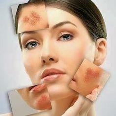 Details on natural homeopathic remedies for Acne rosacea . Homeopathic Treatment are Natural remedies for acne rosacea , scars , redness on chin face cheeks Natural Treatments, Acne Treatments, Scar Treatment, Home Remedies For Rosacea, Natural Acne Remedies, Homeopathic Remedies, Rosacea Causes, Beauty, Natural Remedies