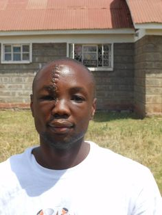 Wow. This man took a machete to the face defending an orphanage. What followed was an impressive display of humanity by total strangers. Read the story...