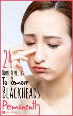 Natural Remove Blackheads 24 Simple Home Remedies To Remove Blackheads Permanently - We all hate blackheads and erasing them can be such a pain. We have enlisted 24 simple yet effective home remedies for blackheads that will definitely help you out Natural Remedies For Congestion, Natural Sleep Remedies, Cough Remedies, Natural Cures, Herbal Remedies, Natural Skin, Home Remedies, Natural Health, Holistic Remedies