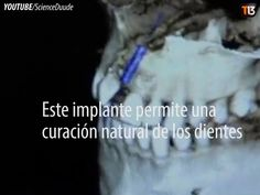 ❝ ¡La solución a muchos problemas dentales! ❞ ↪ Vía: Entretenimiento y Noticias de Tecnología en proZesa