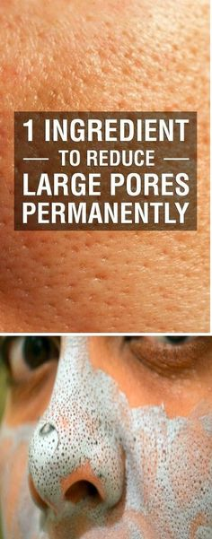 Large pores on your skin can be a consequence of your age