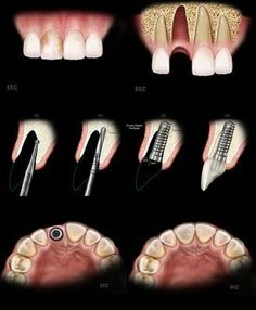 A dental implant can often times be placed after a tooth is extracted. This will prevent future bone loss and allow the patient to leave with a beautiful tooth. Dental Facts, Dental Humor, Dental Hygiene, Dental Health, Dental Care, Smile Dental, Oral Health, Dental Implant Surgery, Teeth Implants