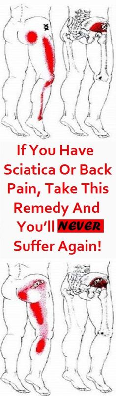 The term sciatica refers to the pain felt in the lower part of the back, buttocks, and leg(s), which occurs as a result of pinched or irritated sciatic nerve – the largest and thickest nerve in the human's body. Sciatica Symptoms, Sciatica Pain Relief, Sciatica Exercises, Sciatic Pain, Sciatic Nerve, Nerve Pain, Stretches, Back Pain Remedies, Training