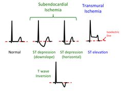 Qrs Complex, Mechanical Force, Heart Rhythms, Ultrasound, Physical Therapy, Physics, Knowledge, People, Physique
