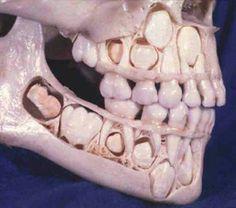Crânio de criança.  Cranio di un bambino. Cranio de un nino.