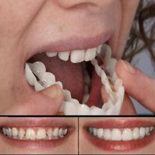 Denture Teeth Whitening Fake Tooth Cover Comfort Fit Snap On Silicone Beauty Veneers Teeth Upper Cosmetic Teeth Smile Teeth, Teeth Care, Veneers Teeth, Teeth Implants, Dental Implants, Dental Surgery, Dental Hygienist, Tooth Replacement, Stained Teeth