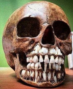 This is a photo of a child?s skull shown with adult teeth waiting to protrude and replace baby teeth. Latifa, Skull Crafts, Human Anatomy Art, Human Oddities, Human Skull, Unusual Things, Skull And Bones, Skeleton Bones, Biology