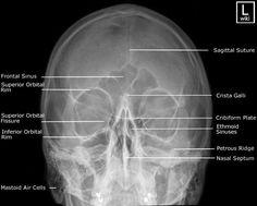 Facial Bones - PA 30° (Caldwell)