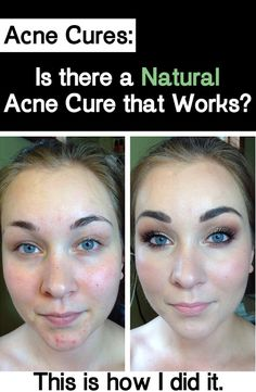 Natural Skin Healing: Acne Cures: This is how I did it.