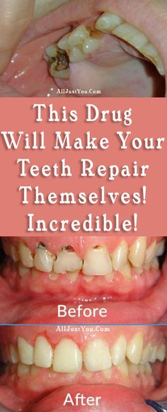 Have you ever break a tooth while you are eating something? This is something that often happens to many people and it requires paying visit to your dentist in order to fix your tooth with dental f…